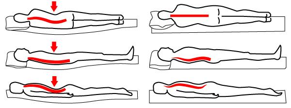 Sciatalgia o sciatica come far passare il dolore con gli esercizi - Mal di schiena letto ...